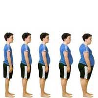 Obésité logicielle